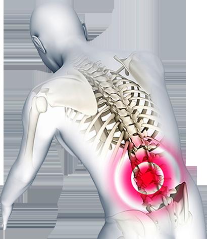 Spinal injury image